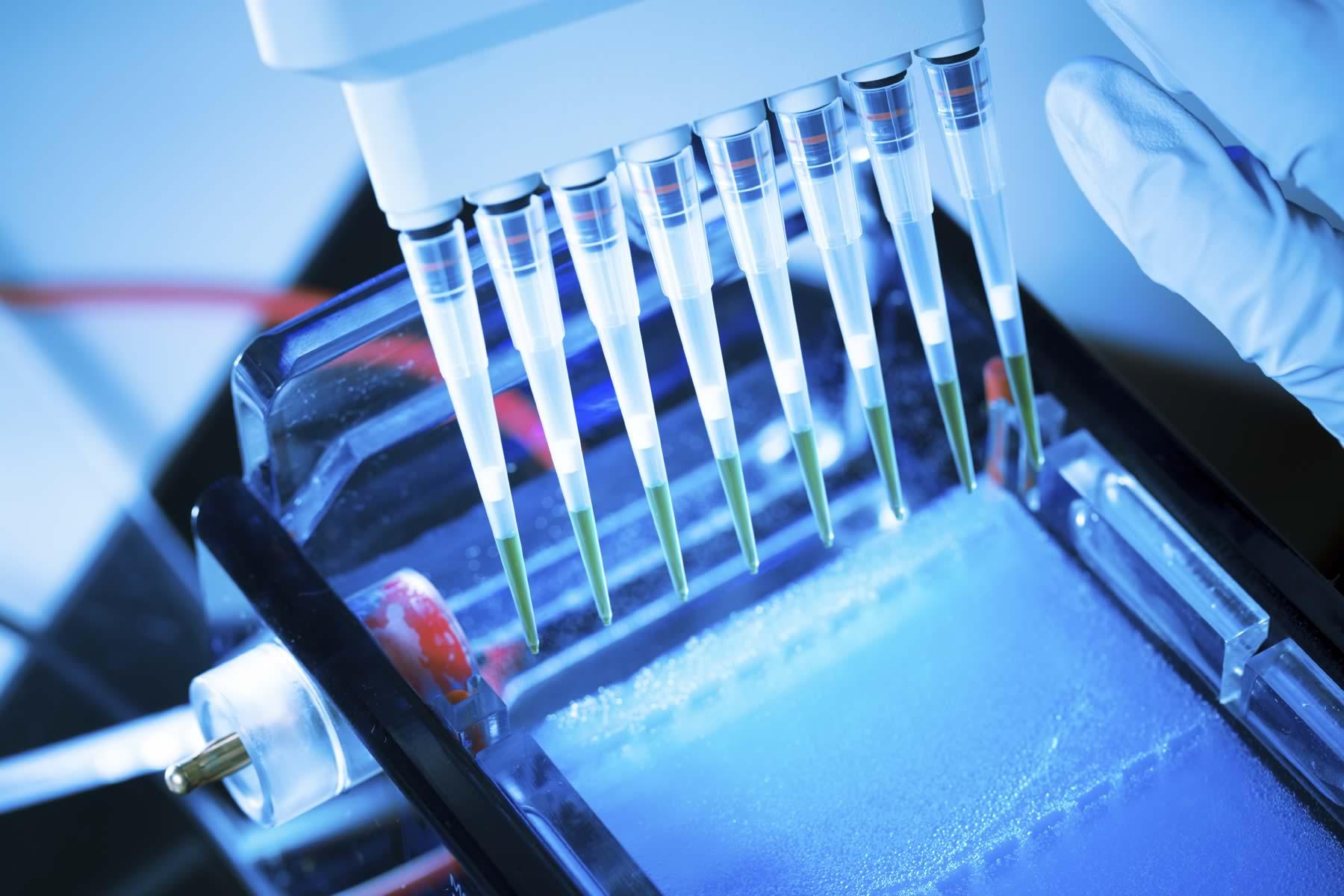 agarose gel electrophoresis pdf