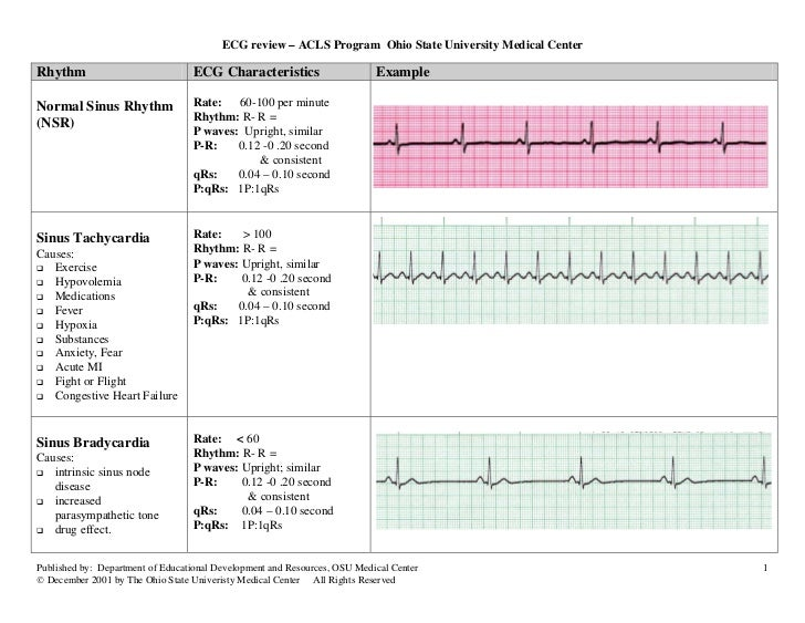 acls rhythms pdf