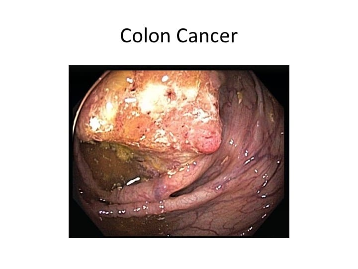 causes of colon cancer pdf